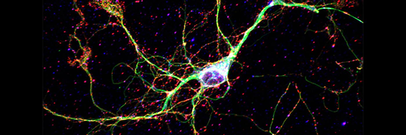 Chris Parkhurst cortical neuron cultured from the early postnatal mouse brain