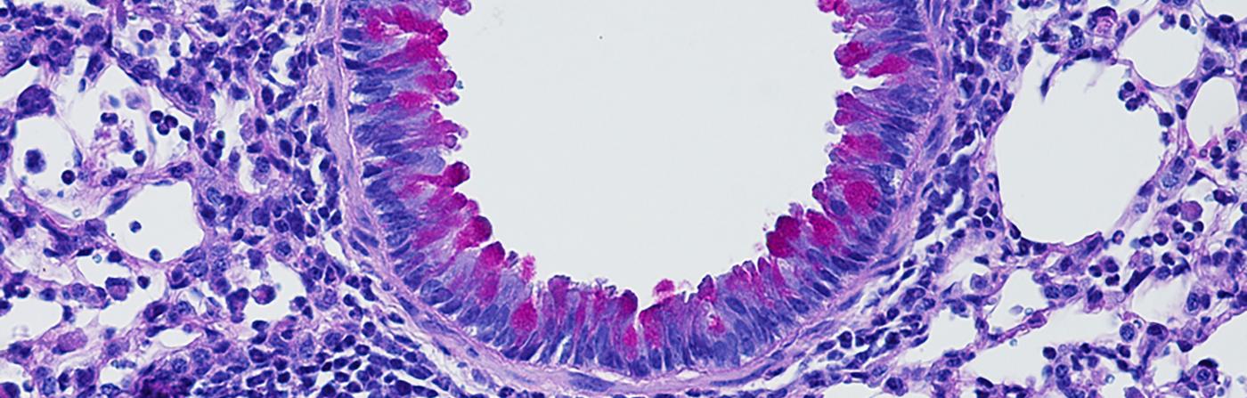 Mucus Inflammed Lung Tissue Artis